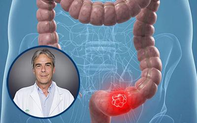 La ubicación del tumor primario en el cáncer de colon influye en la supervivencia del paciente
